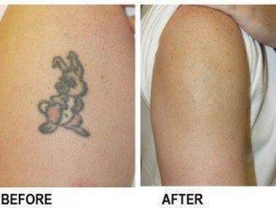 Tattoe Removal Creams/Gel Polokwane,Turfloop +27720283356