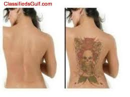 BEST TATTOO REMOVAL CREAM in South Africa