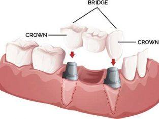Dr Mc Motale Dental, Polokwane Dentits