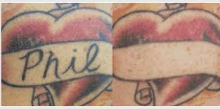 BEST TATTOO REMOVAL CREAM OR GEL+27834812681